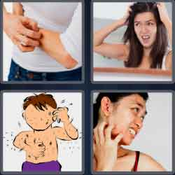 4 Pics 1 Word 5 Letters Level 3719 Itchy