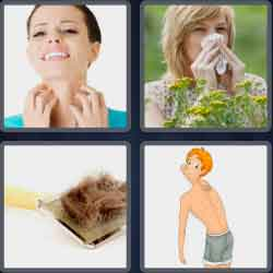 4-pics-1-word-7-letters-allergy